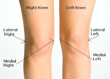 donjoy-clima-flex-oa-knee-brace-sizing-guide.jpg
